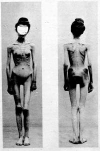 Anorexia_case-1900-Nouvelle_icononographie_de_la_Salpetriere